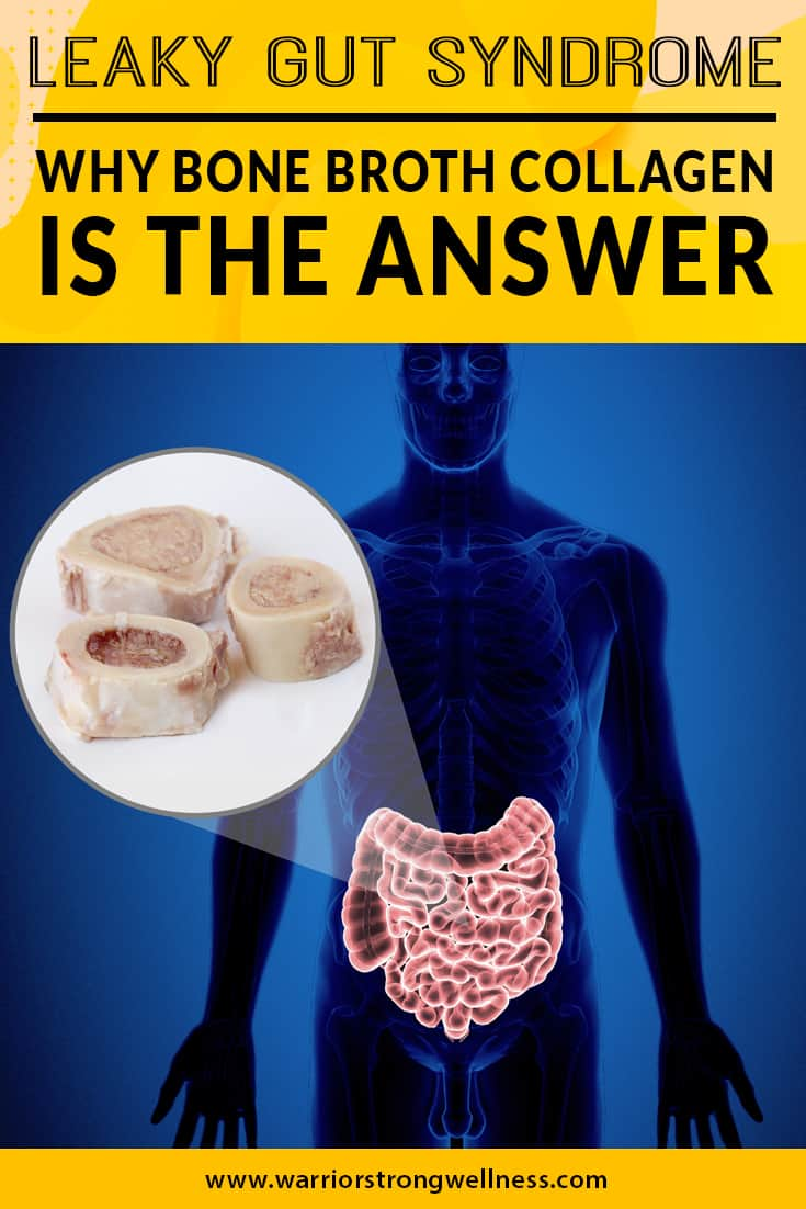 leaky-gut-syndrome-why-bone-broth-collagen-is-the-answer