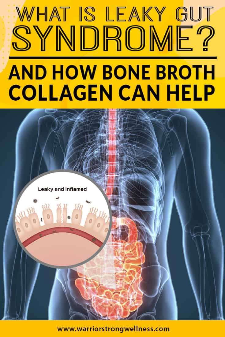 what-is-leaky-gut-syndrome-and-how-bone-broth-collagen-can-help