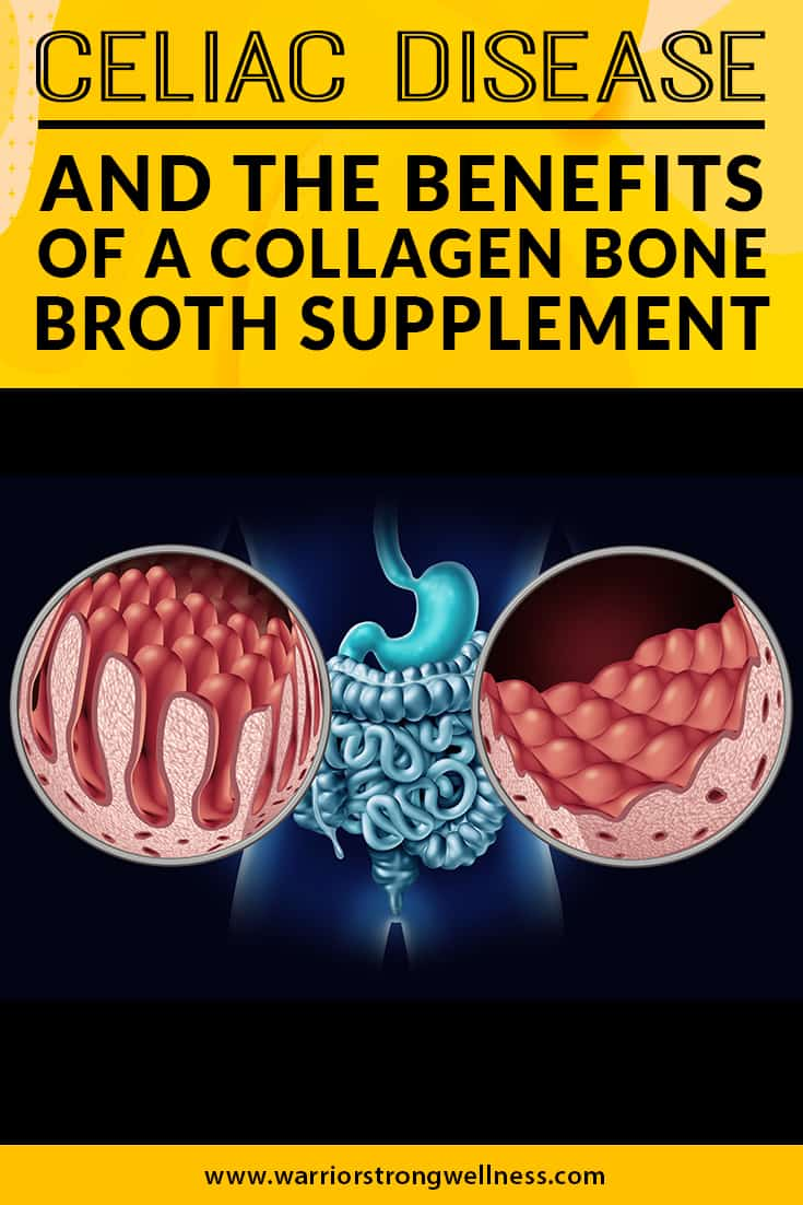 celiac-disease-the-benefits-of-a-collagen-bone-broth-supplement
